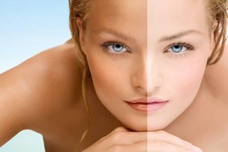 Bronzage UV et tanning